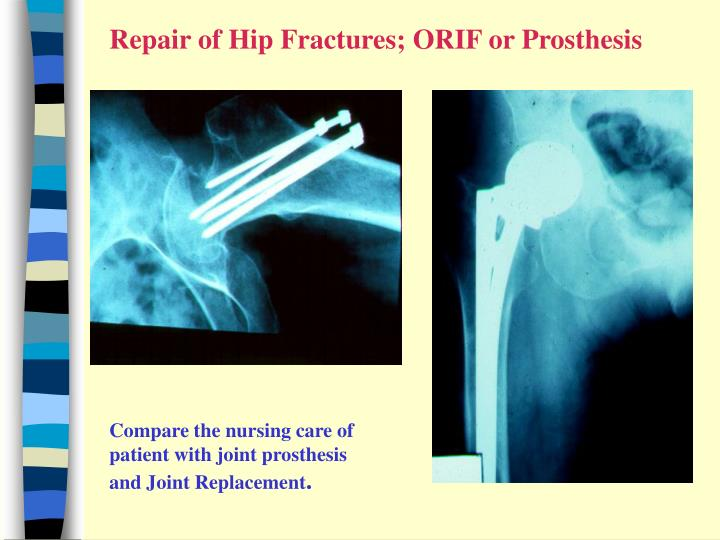 Repair of Hip Fractures; ORIF or Prosthesis