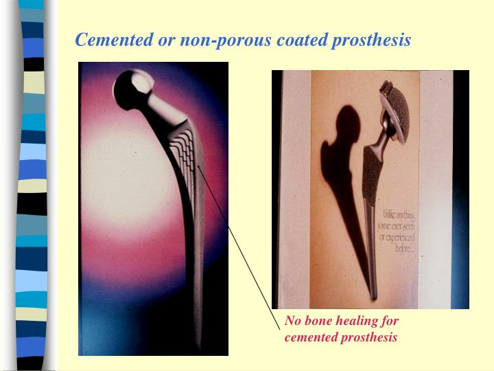 Cemented or non-porous coated prosthesis