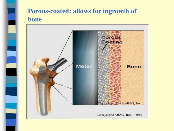 Porous-coated: allows for ingrowth of