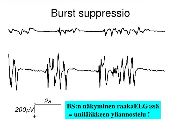 Burst suppressio