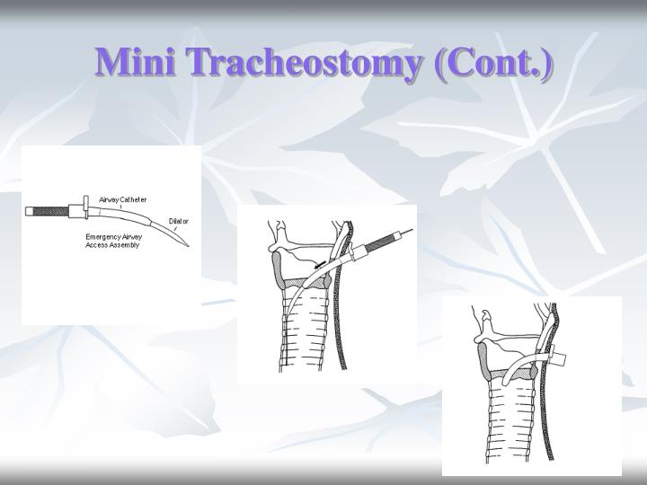 Mini Tracheostomy (Cont.)