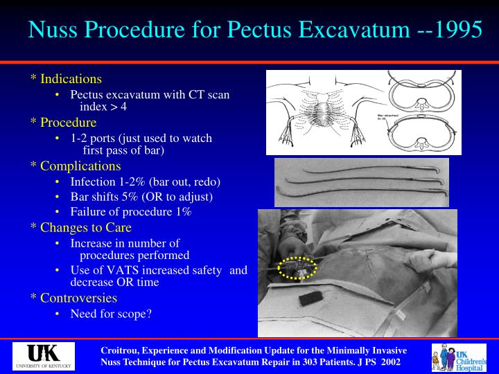 Nuss Procedure for Pectus Excavatum --1995