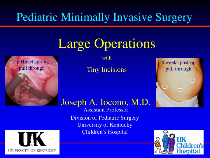 Pediatric Minimally Invasive Surgery