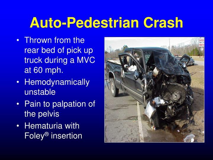 Auto-Pedestrian Crash