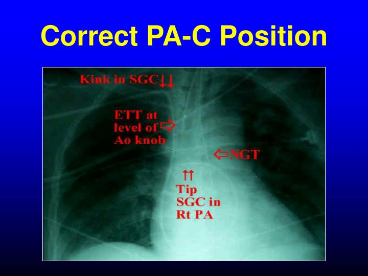 Correct PA-C Position