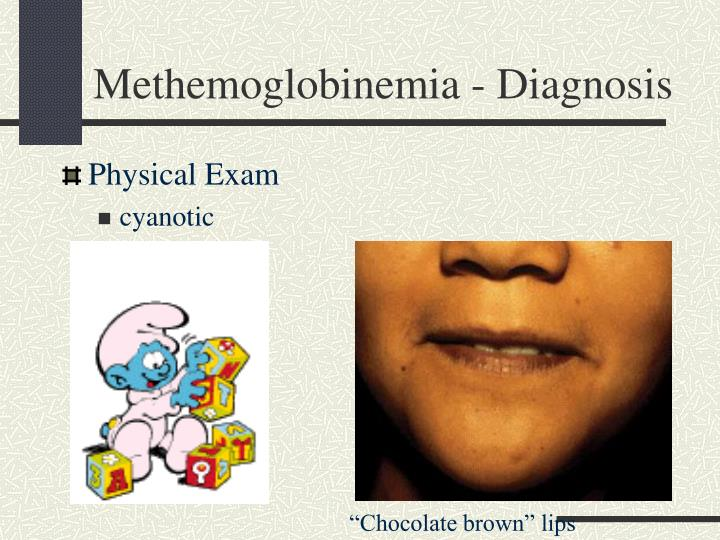 Methemoglobinemia - Diagnosis