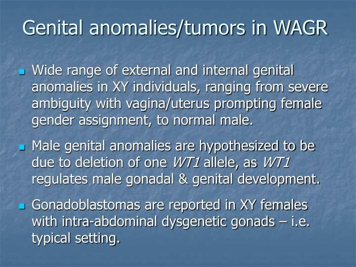 Genital anomalies/tumors in WAGR