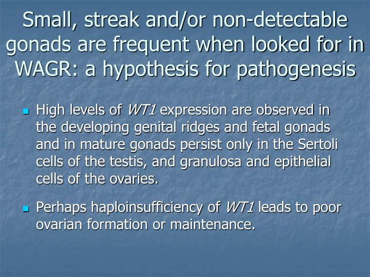 Small, streak and/or non-detectable gonads are frequent when looked for in WAGR: a hypothesis for pathogenesis