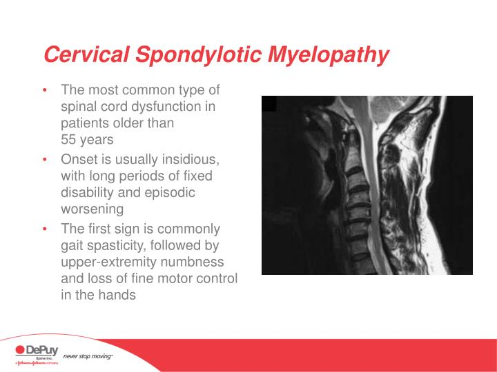Cervical Spondylotic Myelopathy