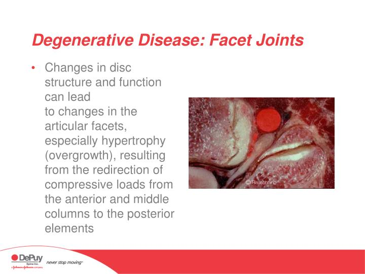 Degenerative Disease: Facet Joints