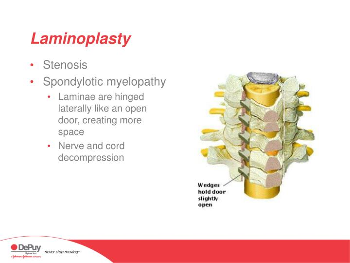Laminoplasty