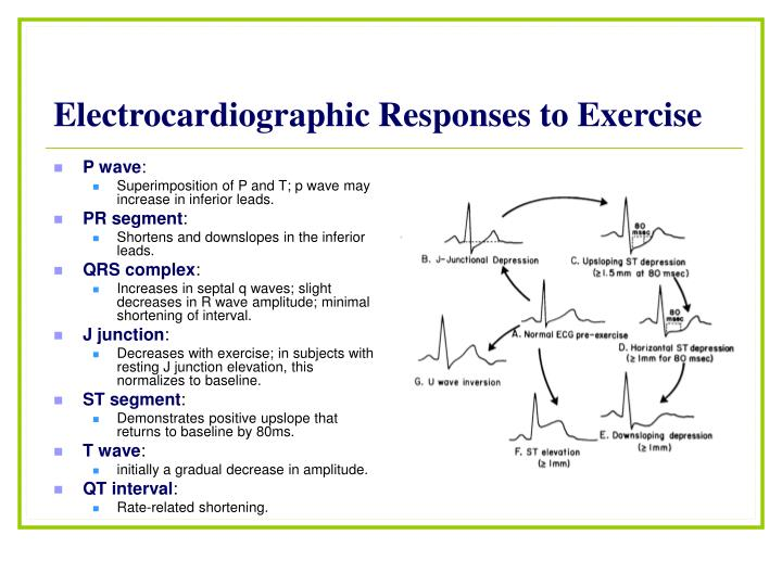 Electrocardiographic Responses to Exercise