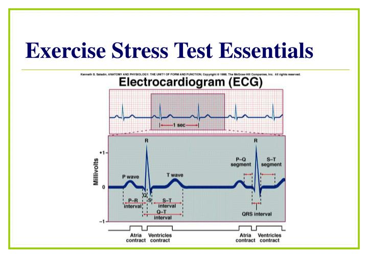 Exercise stress test essentials