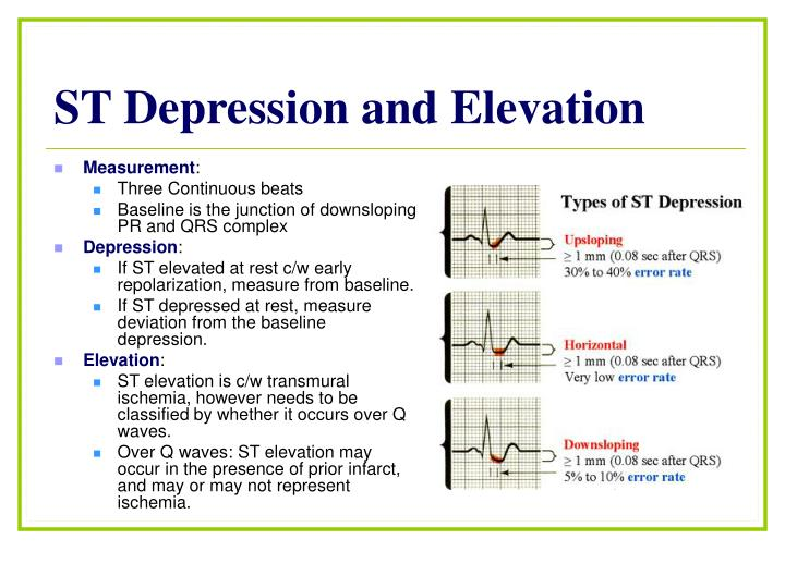 ST Depression and Elevation