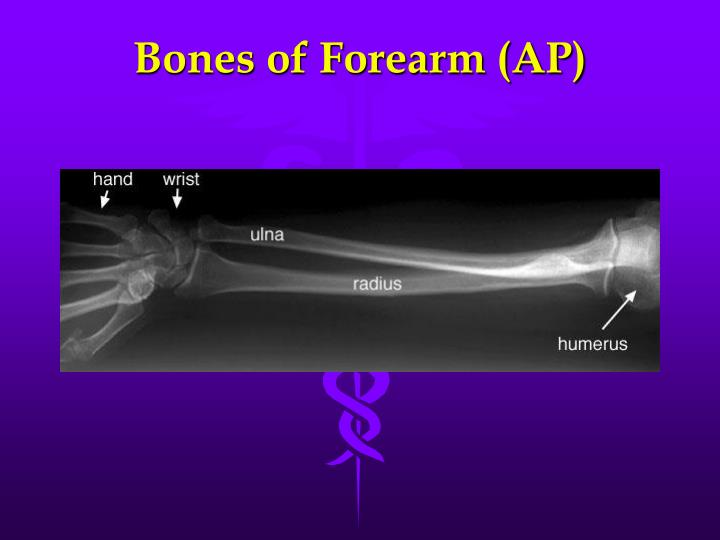 Bones of Forearm (AP)