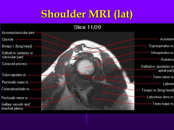 Shoulder MRI (lat)