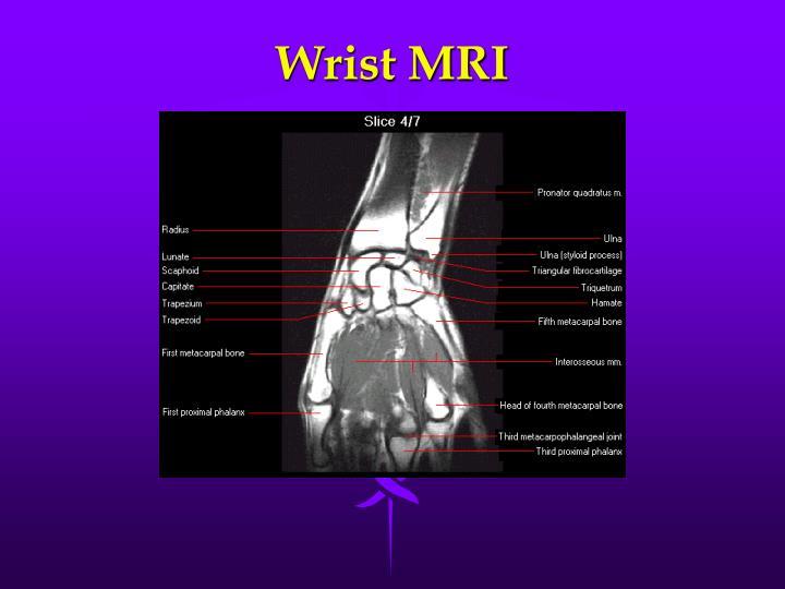 Wrist MRI