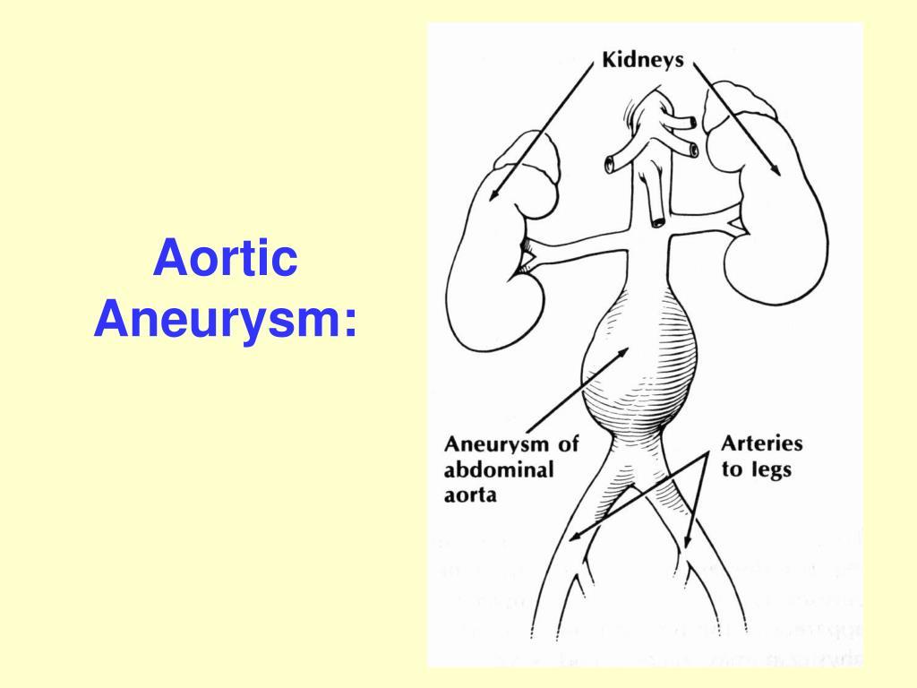 Aortic Aneurysm: