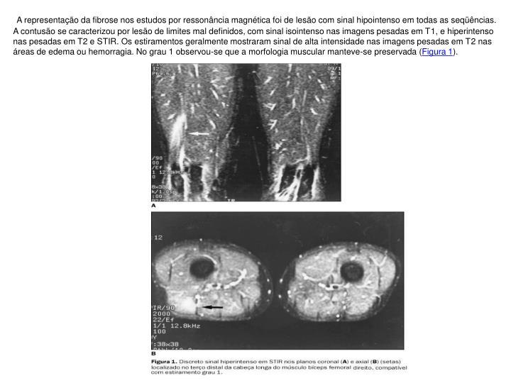 A representação da fibrose nos estudos por ressonância magnética foi de lesão com sinal hipointenso em todas as seqüências. A contusão se caracterizou por lesão de limites mal definidos, com sinal isointenso nas imagens pesadas em T1, e hiperintenso nas pesadas em T2 e STIR. Os estiramentos geralmente mostraram sinal de alta intensidade nas imagens pesadas em T2 nas áreas de edema ou hemorragia. No grau 1 observou-se que a morfologia muscular manteve-se preservada (