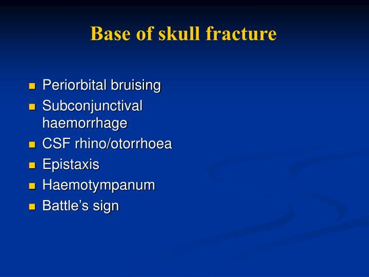 Base of skull fracture