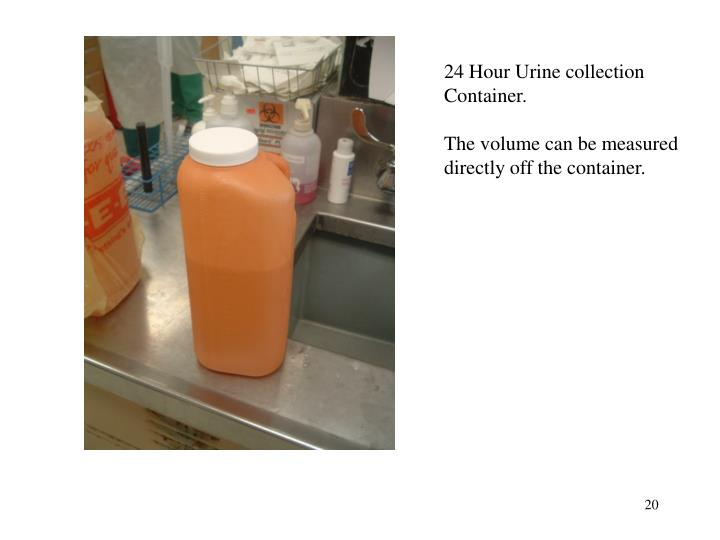 24 Hour Urine collection