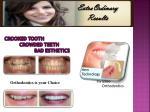 crooked tooth crowded teeth bad esthetics