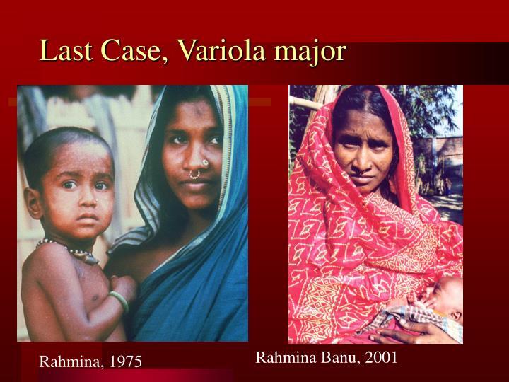Last Case, Variola major