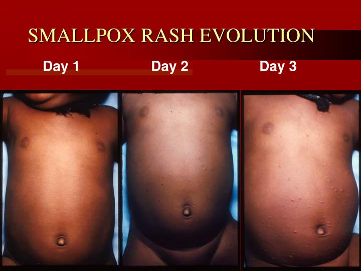 SMALLPOX RASH EVOLUTION