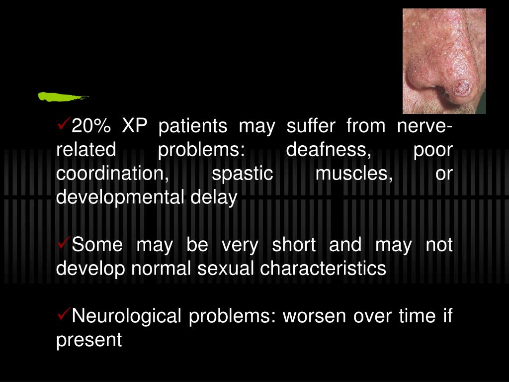 20% XP patients may suffer from nerve-related problems: deafness, poor coordination, spastic muscles, or developmental delay