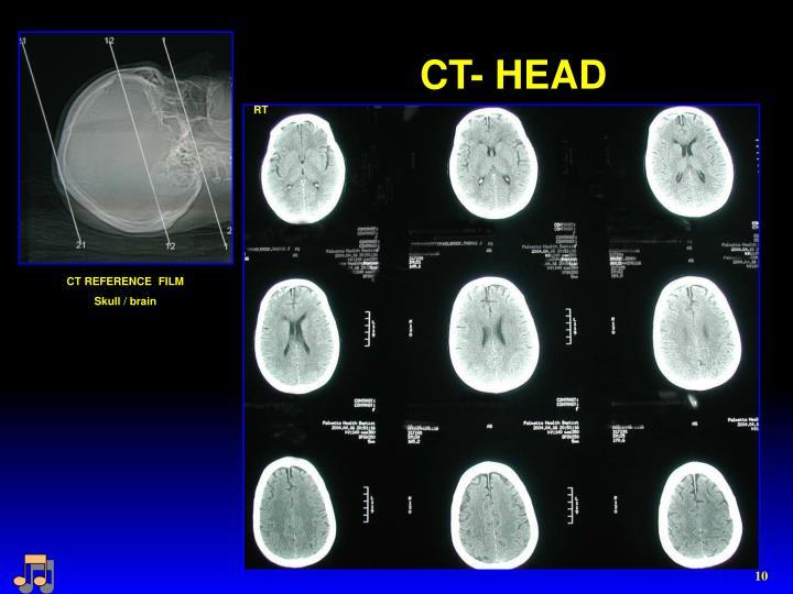 CT- HEAD