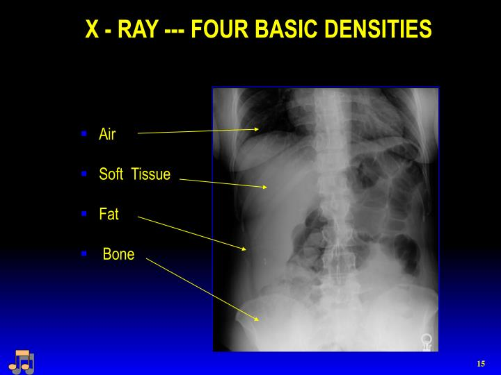 X - RAY --- FOUR BASIC DENSITIES