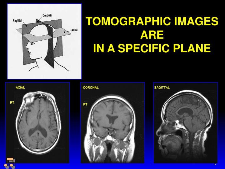 TOMOGRAPHIC IMAGES ARE