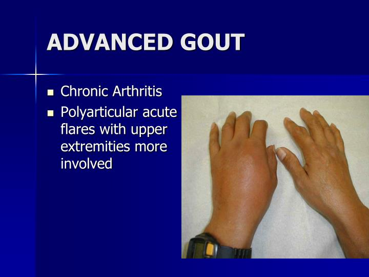 ADVANCED GOUT