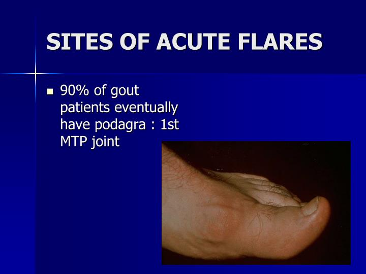 SITES OF ACUTE FLARES