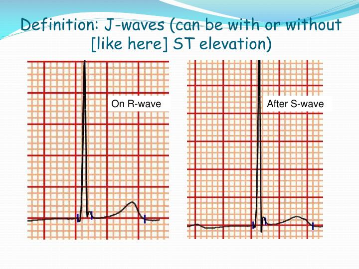Definition: J-waves (can be with or without [like here] ST elevation)