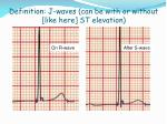 definition j waves can be with or without like here st elevation