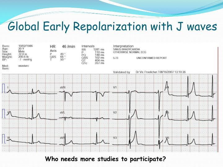 Global Early Repolarization with J waves