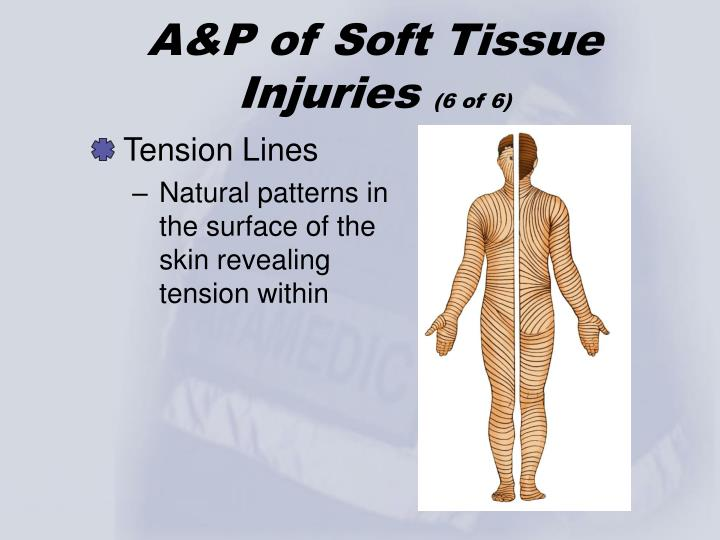 A&P of Soft Tissue Injuries
