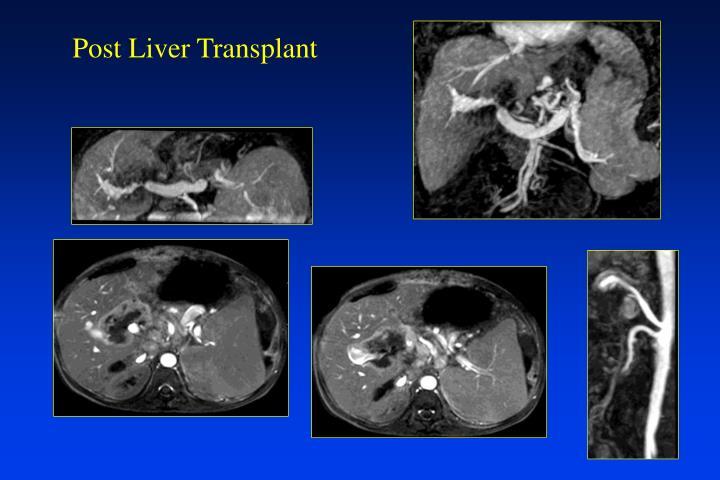 Post Liver Transplant