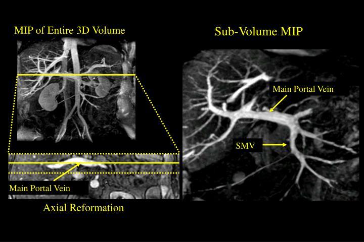 MIP of Entire 3D Volume
