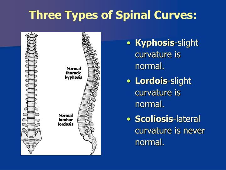 Three Types of Spinal Curves: