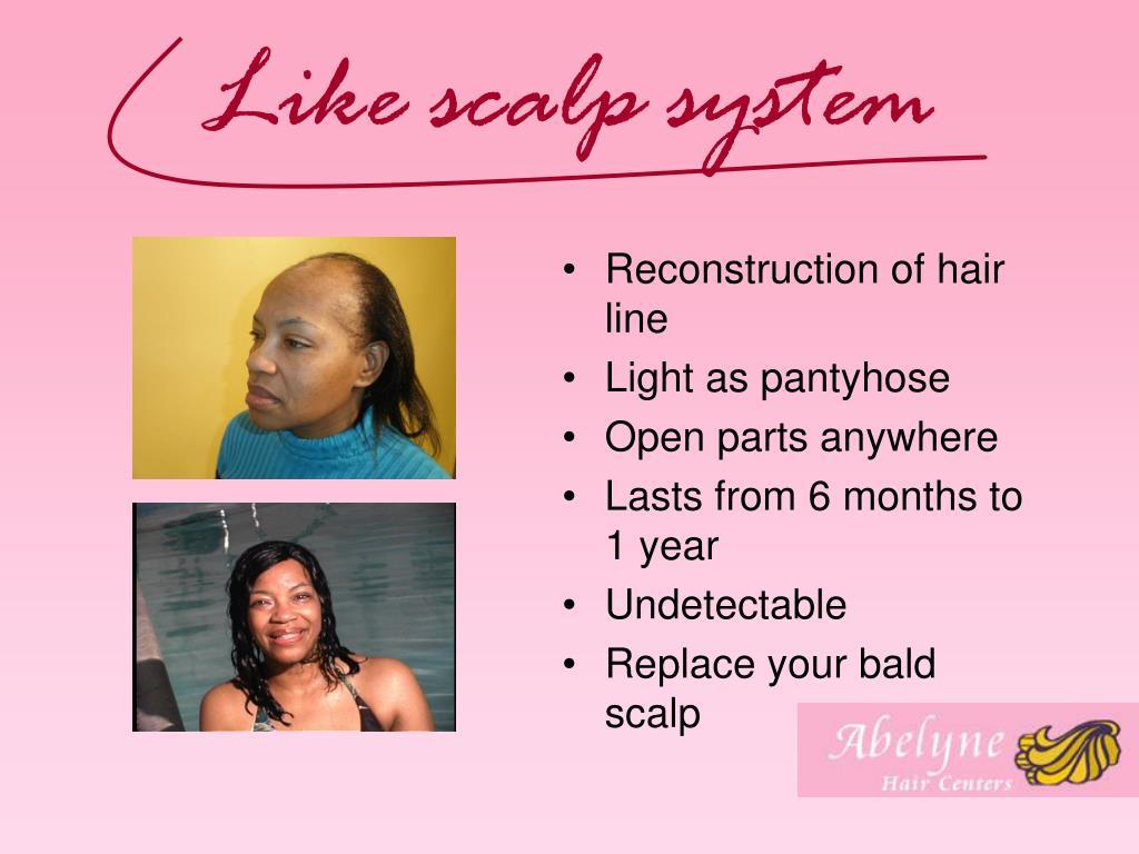 Like scalp system