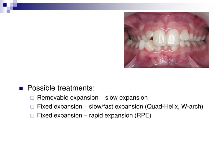 Possible treatments: