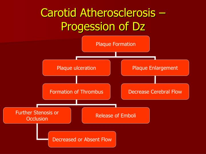 Carotid Atherosclerosis – Progession of Dz
