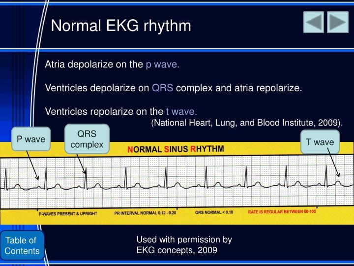 Normal EKG rhythm
