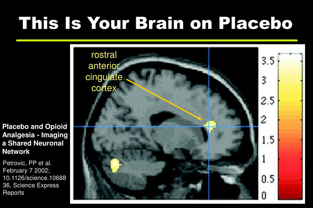 This Is Your Brain on Placebo