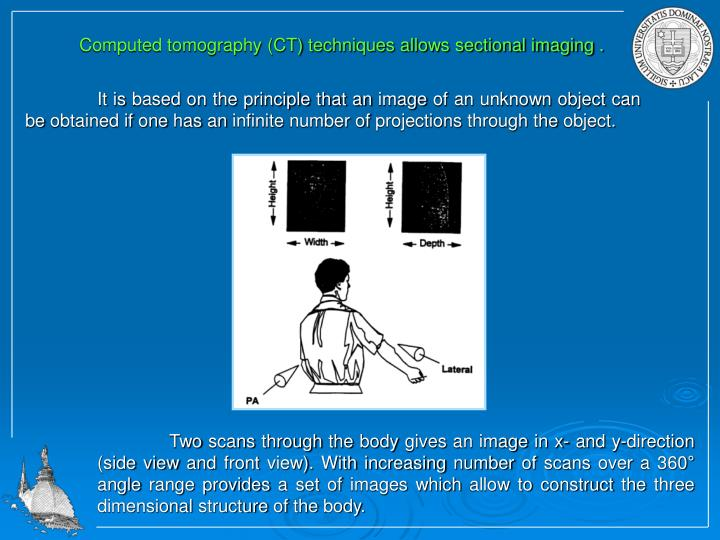 Computed tomography (CT) techniques allows sectional imaging .