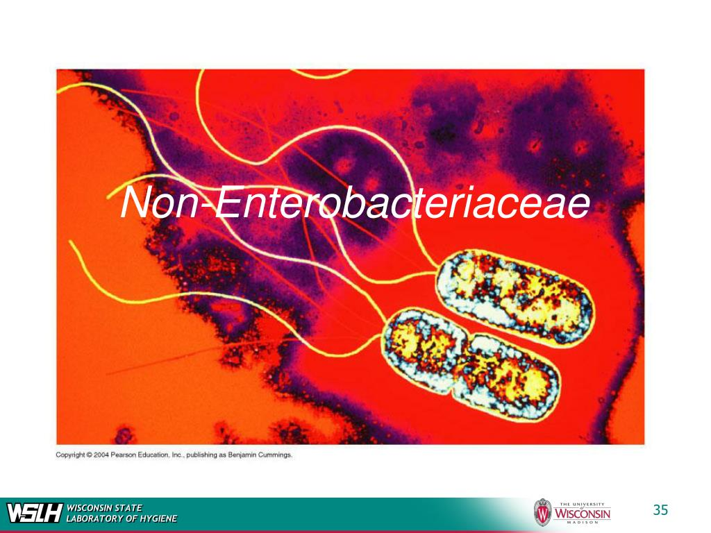 Non-Enterobacteriaceae