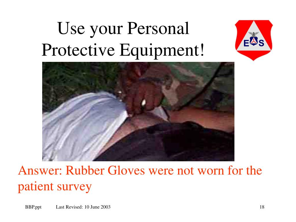 Use your Personal Protective Equipment!