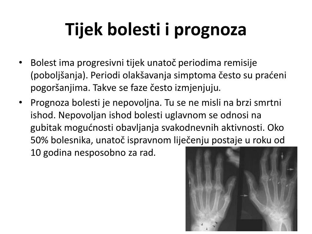 Tijek bolesti i prognoza